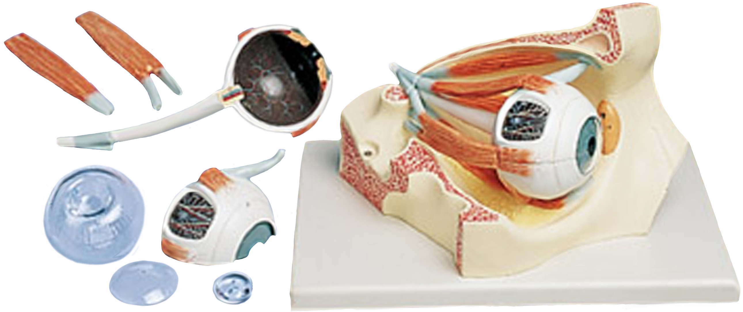 Human Eye Models - Cross Section, Cornea Conditions, Cataract Eye