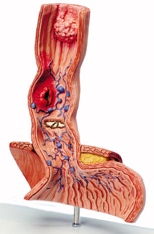 bronchus sections diseases of the esophagus thyroid