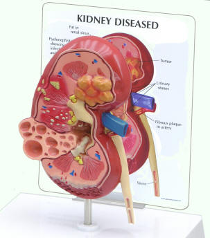 Human kidney models ccuart Choice Image